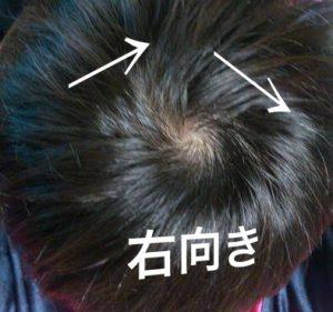 つむじで髪がはねる方に縮毛矯正
