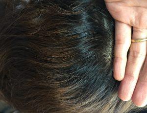 強い波状毛と捻転毛