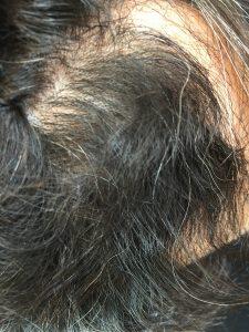 前髪のくせ毛