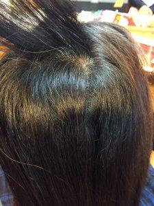 内側のくせ毛