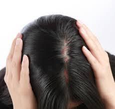 固い頭皮は切れ毛のサイン