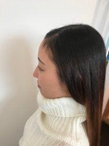 気になるお顔回りのくせ毛も縮毛矯正で自然な仕上がりに